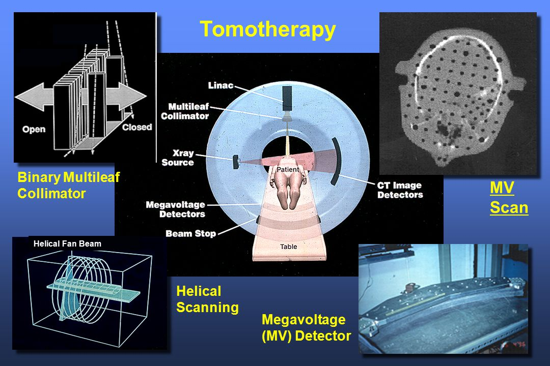 Tomotherapy MV Scan Binary Multileaf Collimator Helical Scanning