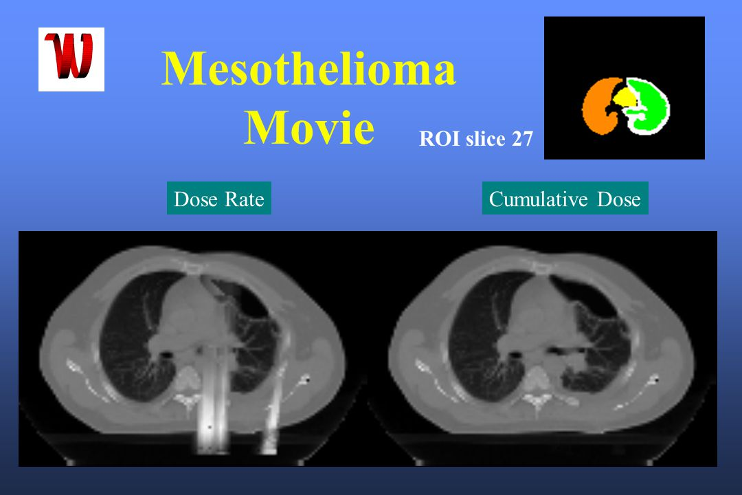Mesothelioma Movie ROI slice 27 Dose Rate Cumulative Dose