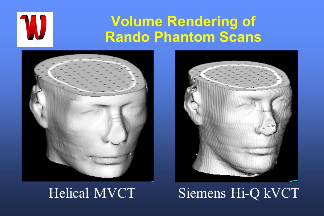 Volume Rendering of Rando Phantom Scans