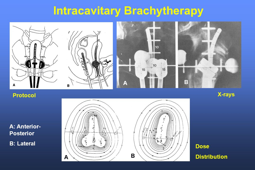 Intracavitary Brachytherapy