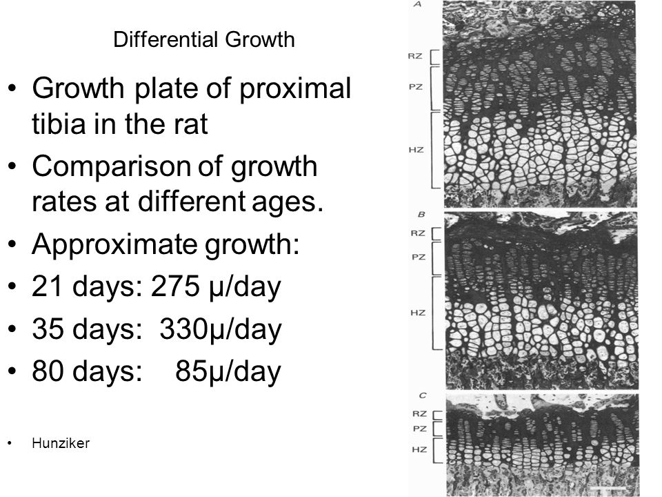 Growth plate of proximal tibia in the rat
