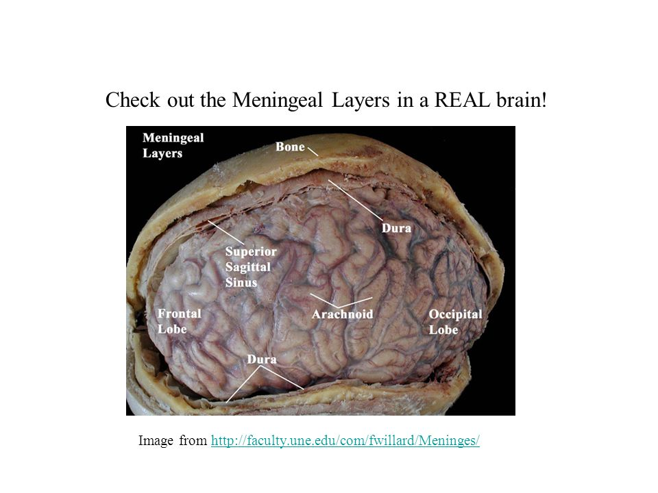 The Brain & Sports-Related Concussions - ppt download
