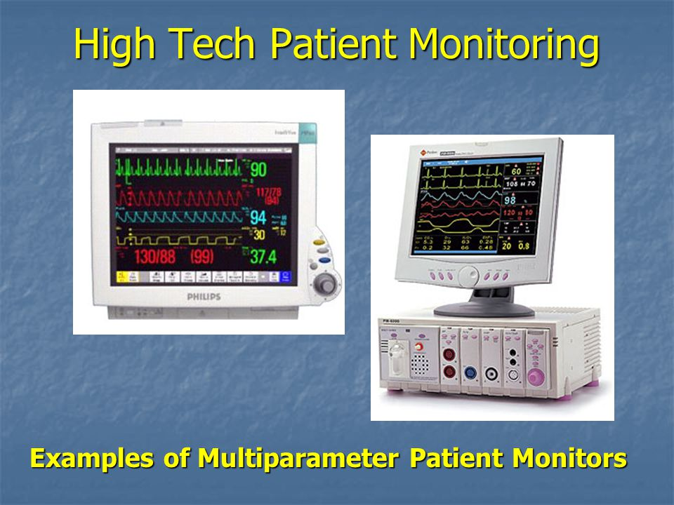 INTRODUCTION TO PATIENT MONITORING - ppt video online download