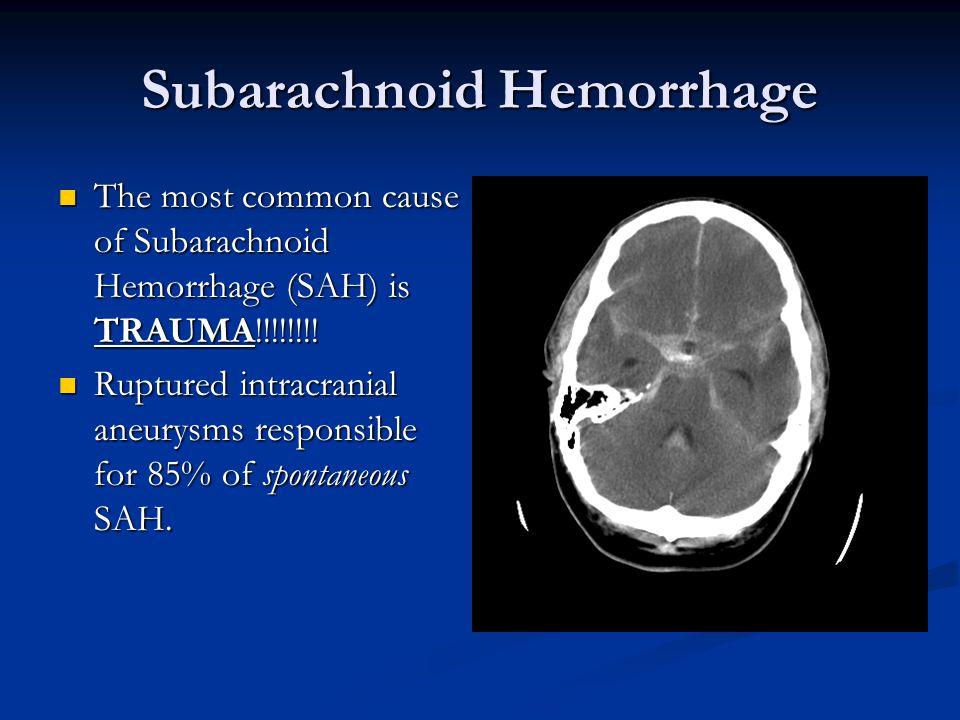 Subarachnoid Hemorrhage