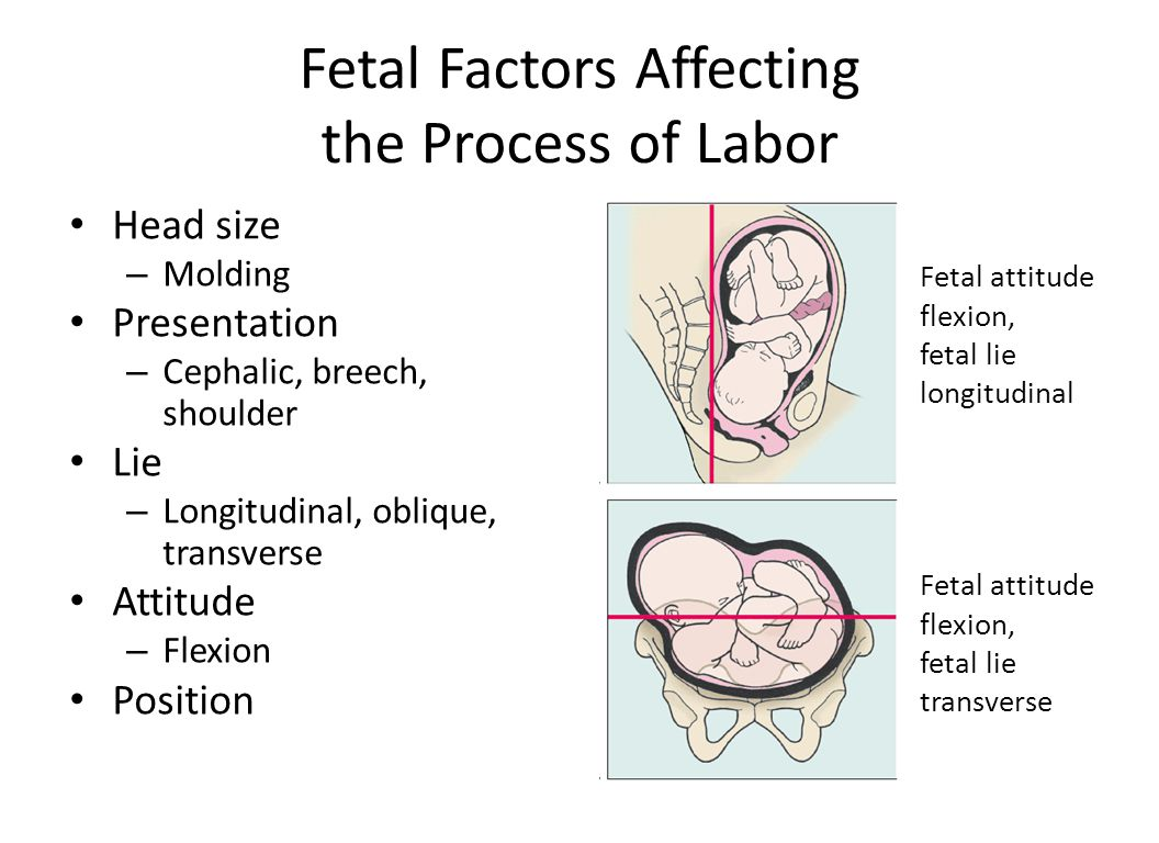Fetal position: the longitudinal presentation of the head than characterized 58
