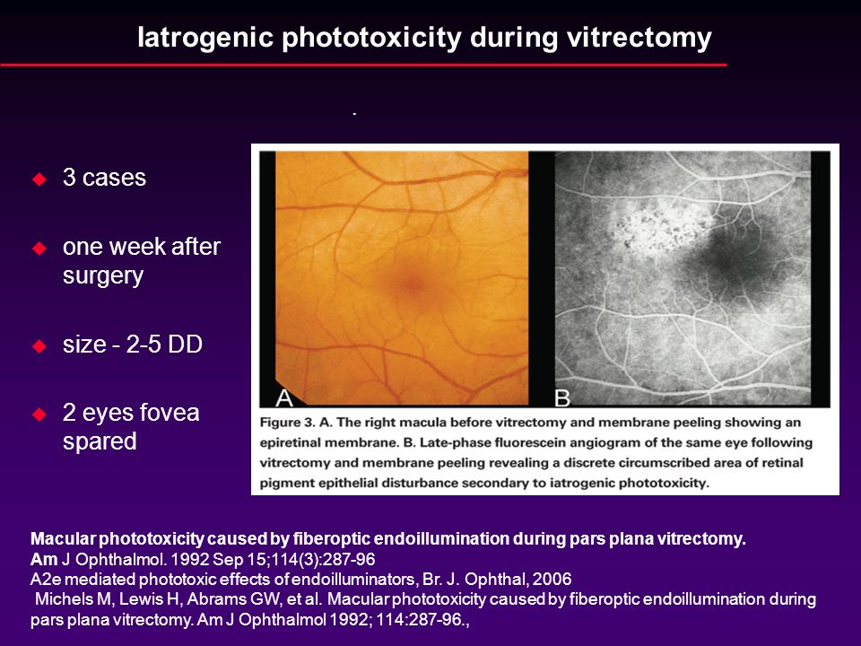 Iatrogenic phototoxicity during vitrectomy