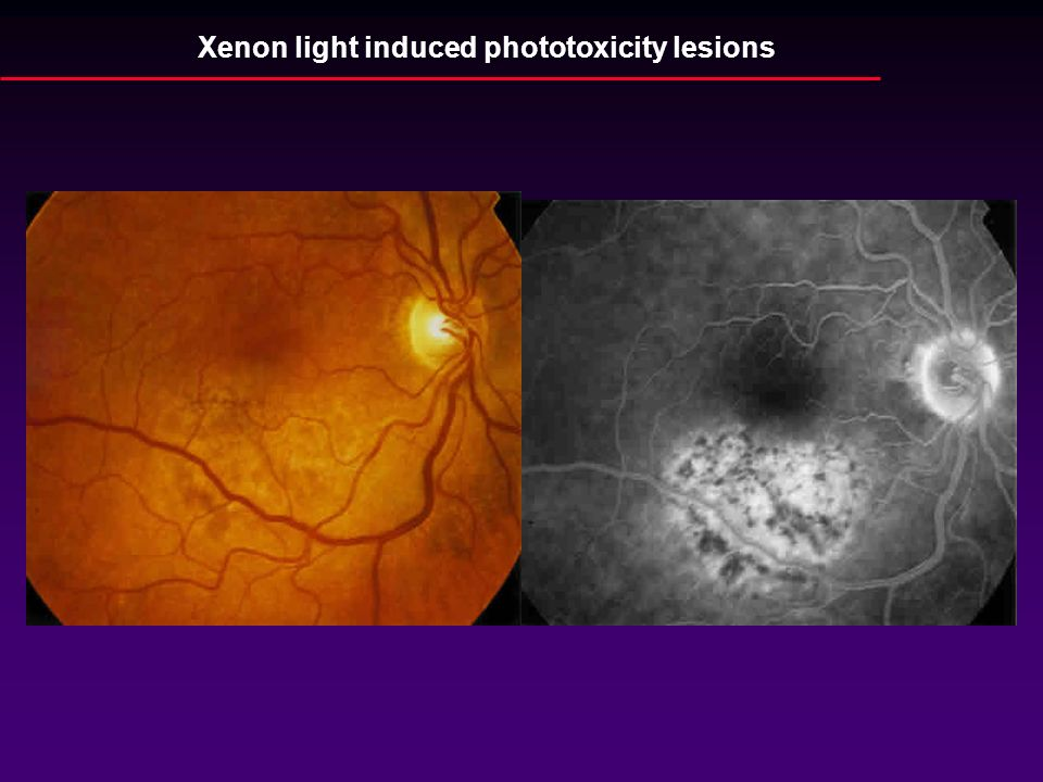 Xenon light induced phototoxicity lesions