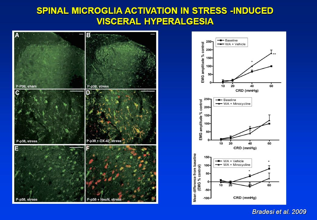 SPINAL MICROGLIA ACTIVATION IN STRESS -INDUCED VISCERAL HYPERALGESIA