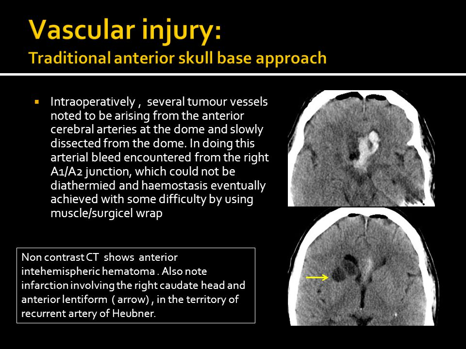 An Imaging Review of Postoperative Complications of Skull Base ...