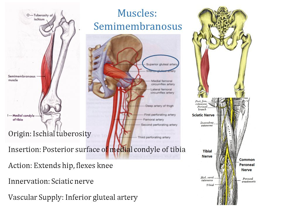 Iliofemoral Joint aka Hip Joint - ppt video online download