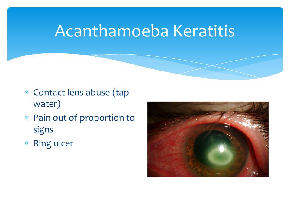 Cornea Remove: Thygeson\'s, dystrophies? (2), peripheral ulcerative ...