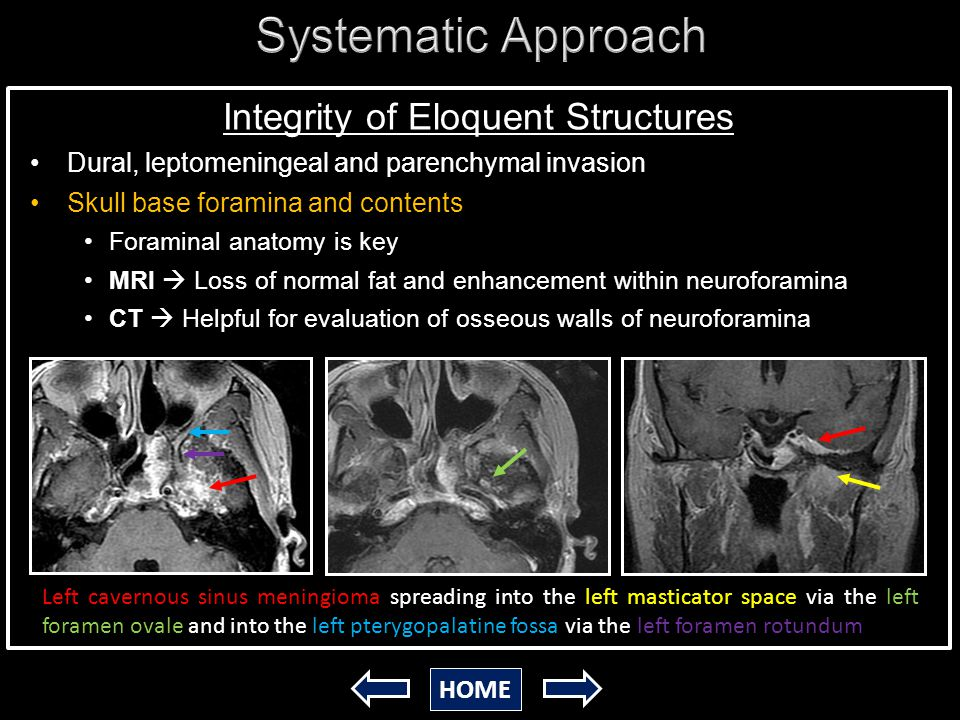 Imaging Of Skull Base Tumors Henry Ford Health System Ppt Video