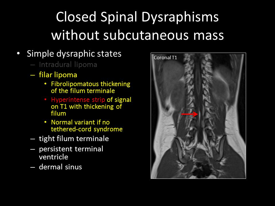 Spinal Dysraphisms Congenital Spinal Cord Abnormalities Ppt Video Online Download A thickened filum over 2mm in diameter, a low lying conus medullaris and no other cause of tethering. spinal dysraphisms congenital spinal
