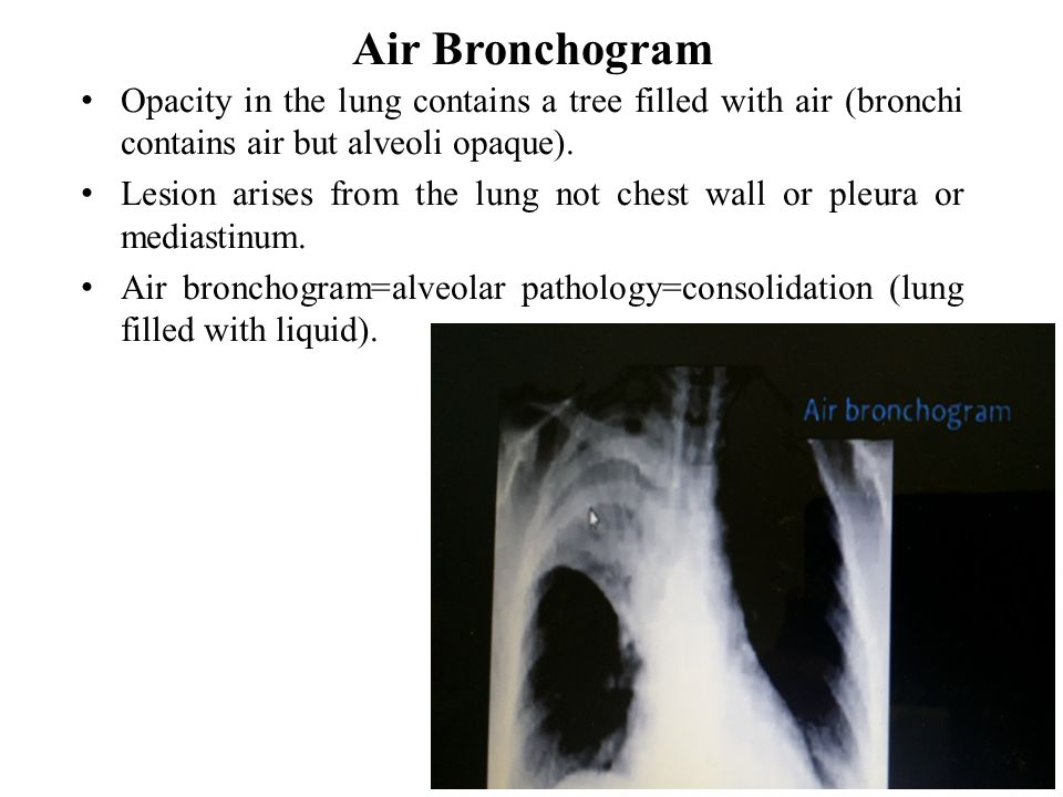Air Bronchogram Opacity in the lung contains a tree filled with air (bronchi contains air but alveoli opaque).