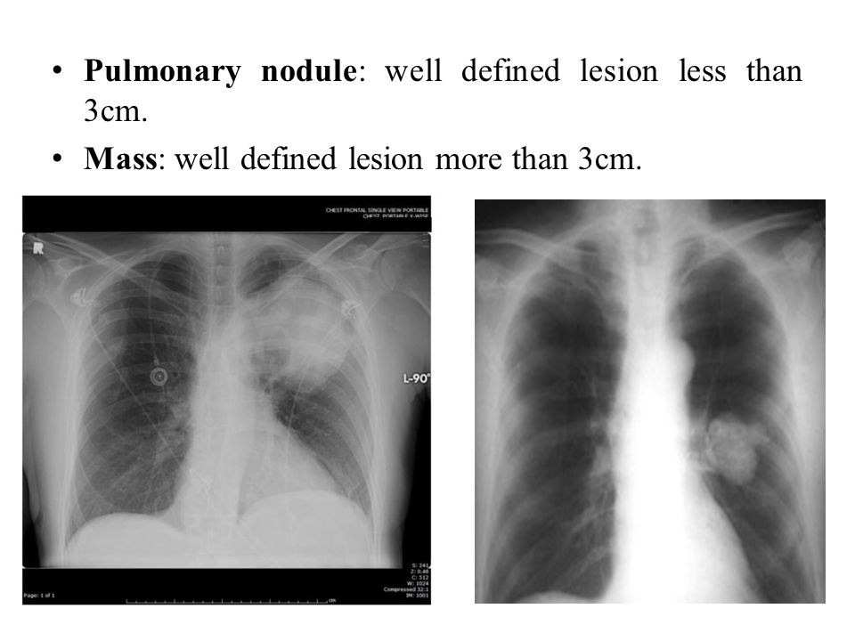 Pulmonary nodule: well defined lesion less than 3cm.
