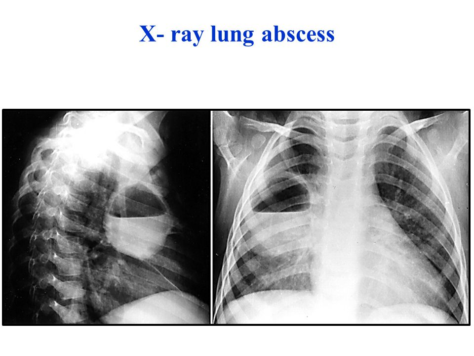 X- ray lung abscess