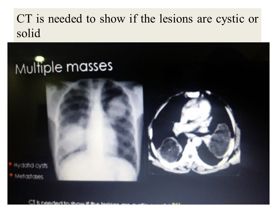 CT is needed to show if the lesions are cystic or solid