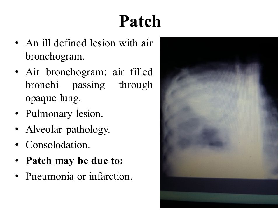 Patch An ill defined lesion with air bronchogram.