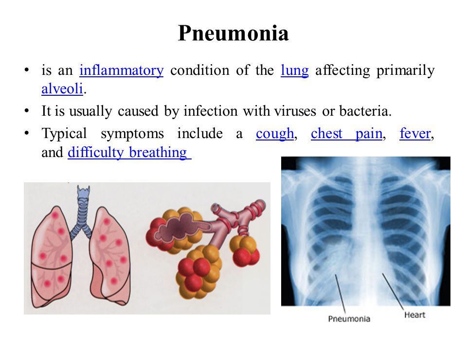 Pneumonia is an inflammatory condition of the lung affecting primarily alveoli. It is usually caused by infection with viruses or bacteria.
