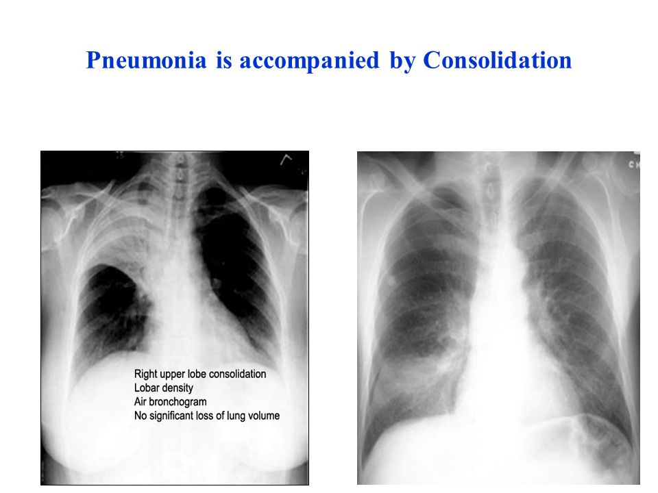 Pneumonia is accompanied by Consolidation