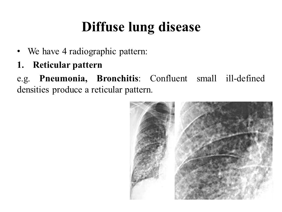 Diffuse lung disease We have 4 radiographic pattern: Reticular pattern
