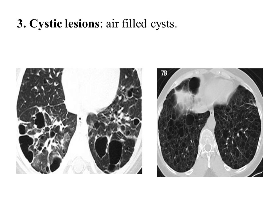 3. Cystic lesions: air filled cysts.