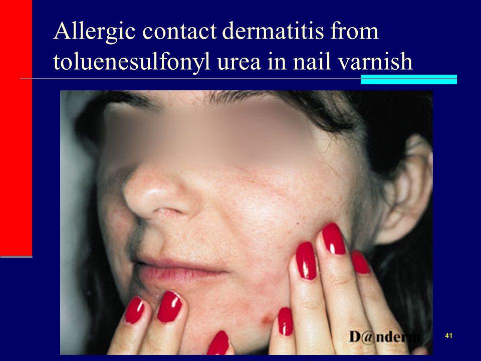 Nail Polish Allergy Face – Papillon Day Spa Nail Polish Allergy Face – Papillon Day Spa Nail Polish nail polish allergy