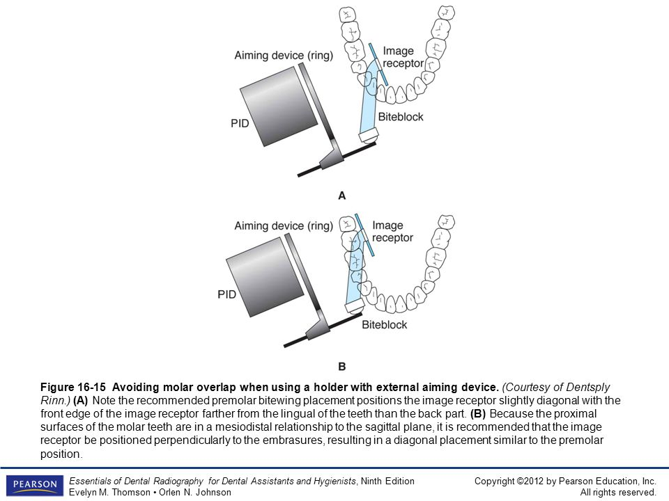 Premolar Bitewing Diagram - Application Wiring Diagram •