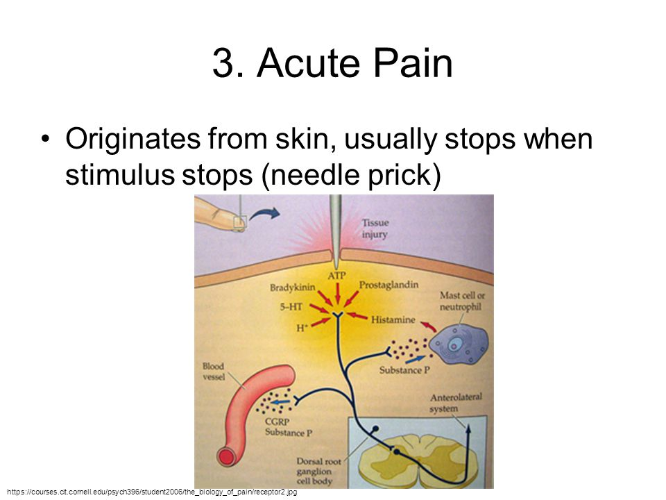 3. Acute Pain Originates from skin, usually stops when stimulus stops (needle prick)