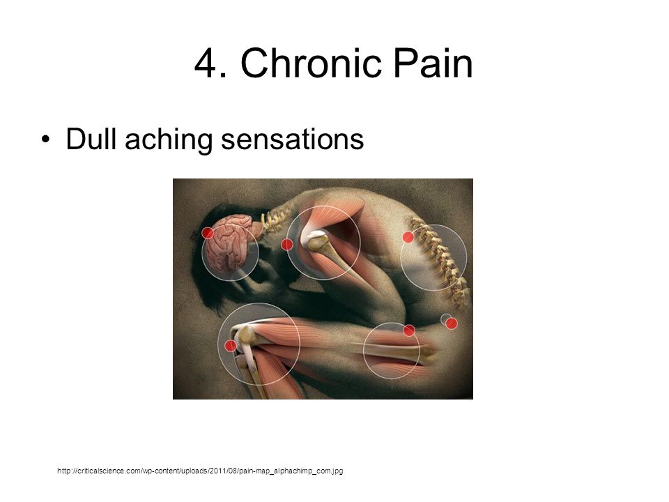4. Chronic Pain Dull aching sensations