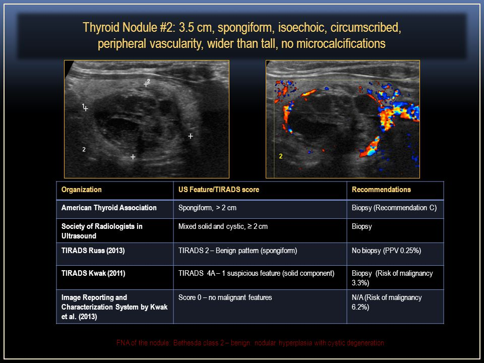 Ti Rads Thyroid Imaging Reporting And Data System Ppt Download