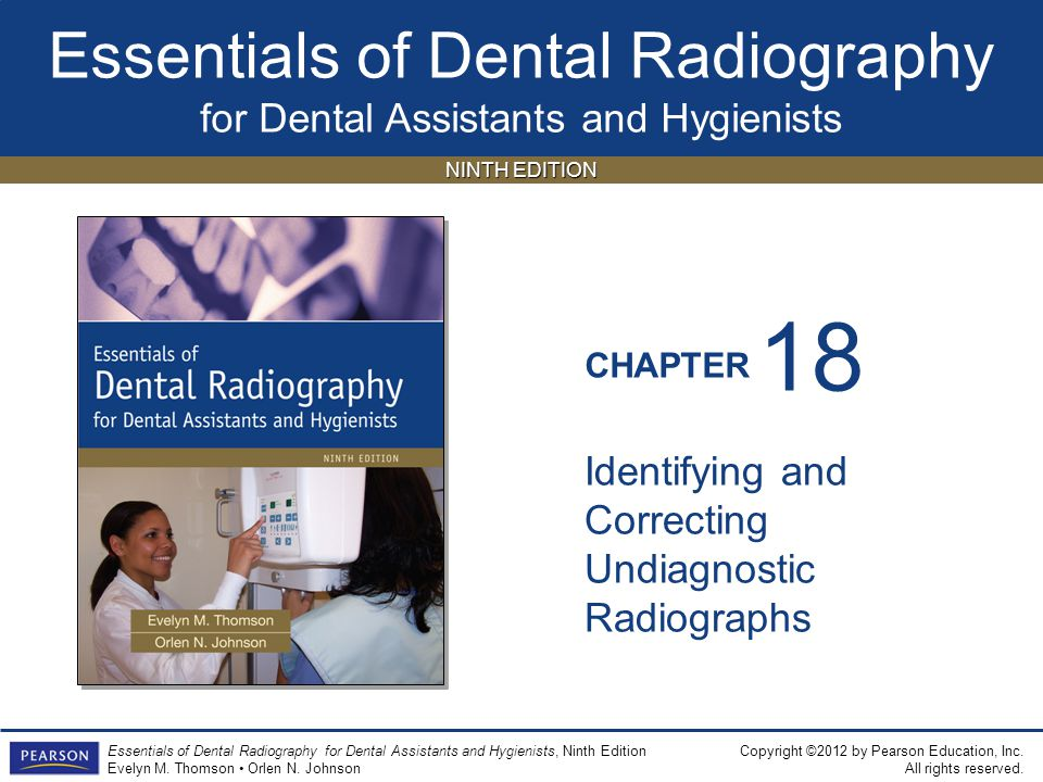 18 Identifying and Correcting Undiagnostic Radiographs