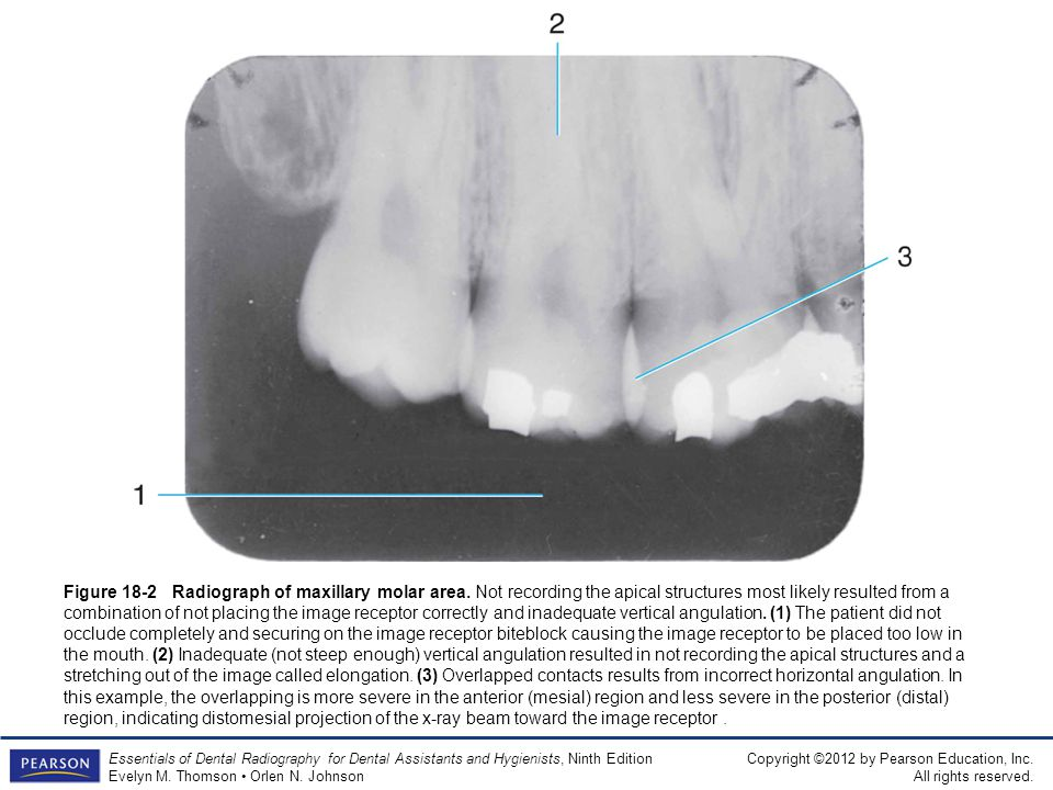 Figure 18-2 Radiograph of maxillary molar area