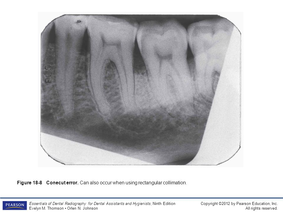 Figure 18-8 Conecut error. Can also occur when using rectangular collimation.
