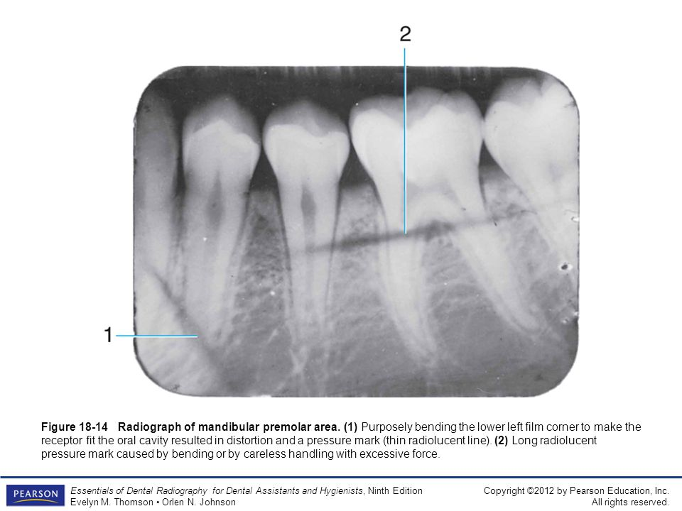 Figure Radiograph of mandibular premolar area