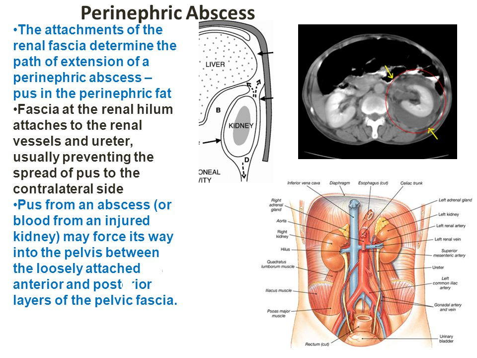 Perinephric Abscess The attachments of the renal fascia determine the path of extension of a perinephric abscess – pus in the perinephric fat.