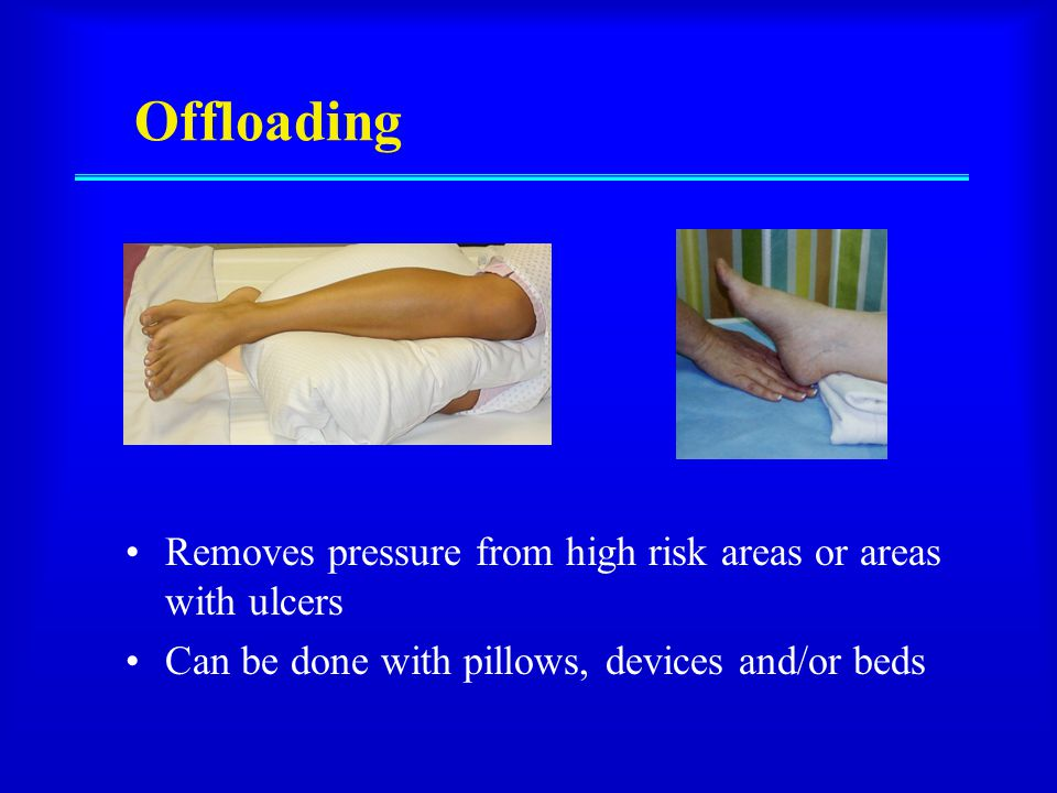 examples of pressure ulcer risk assessment tools