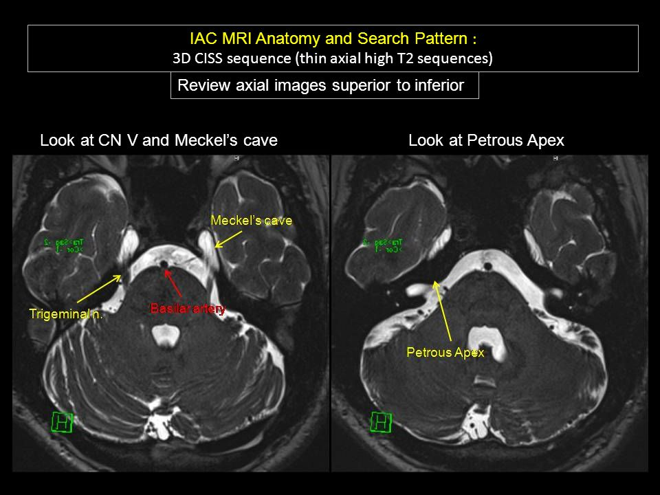 Navigating The Temporal Bone And Iac To Reveal Hearing Loss