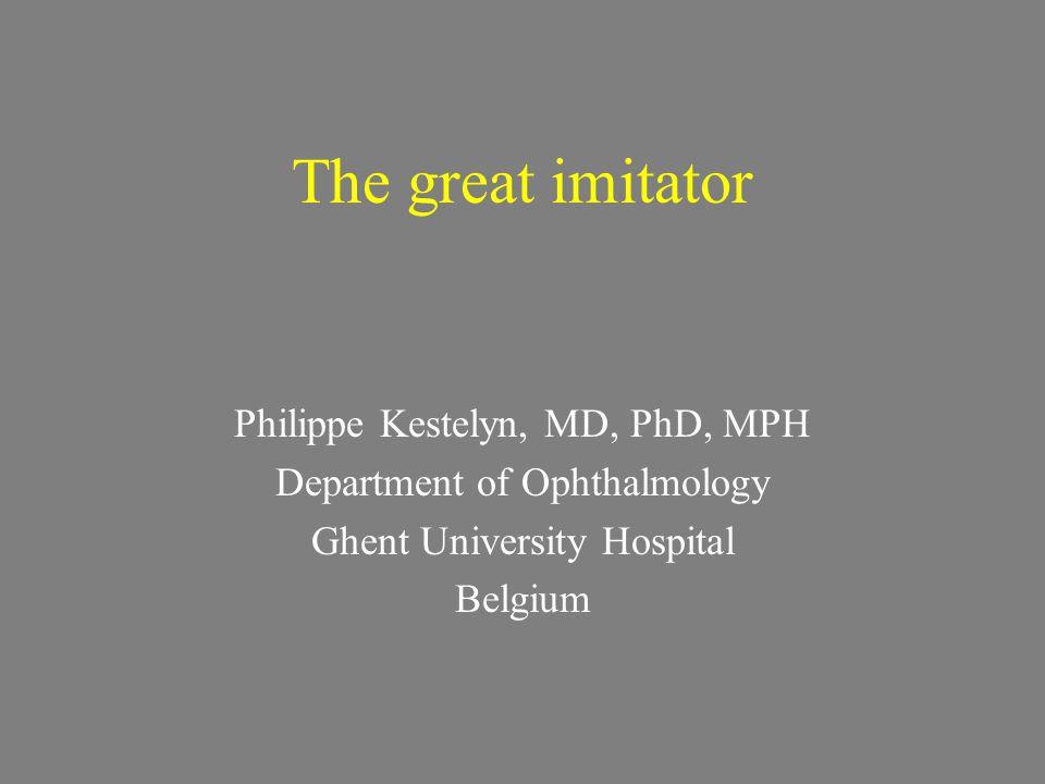 Anterior uveitis Granulomatous type IOP rise
