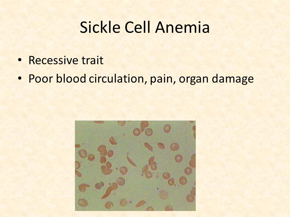 Sickle Cell Anemia Recessive trait