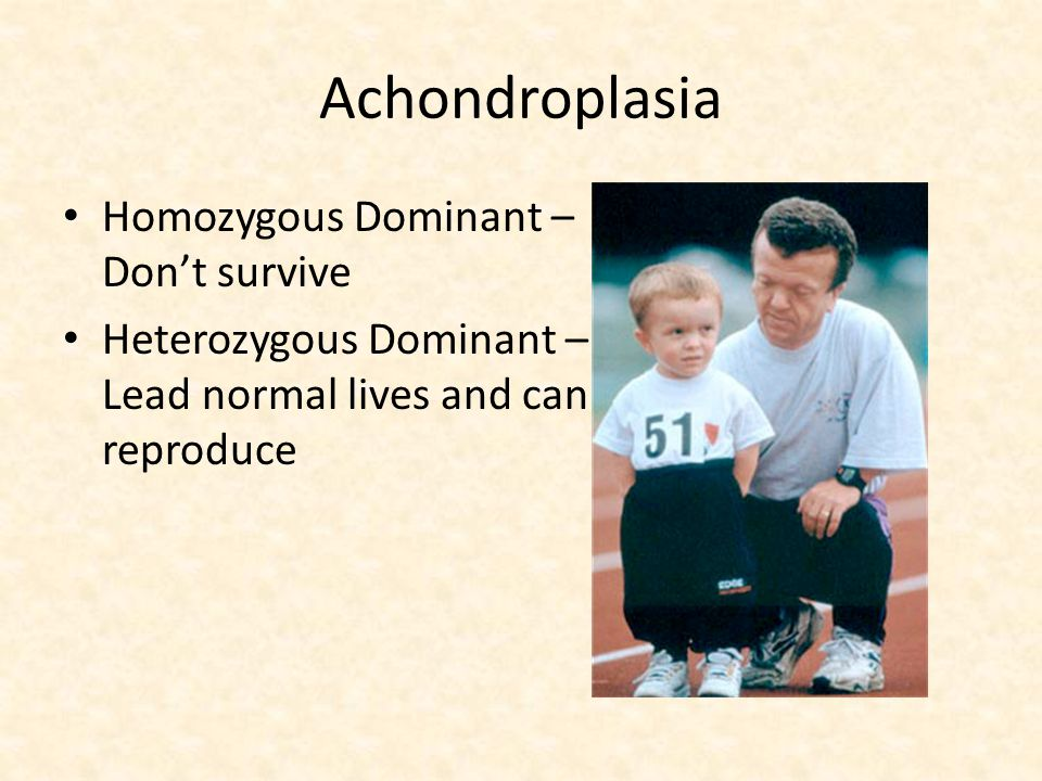 Achondroplasia Homozygous Dominant – Don't survive
