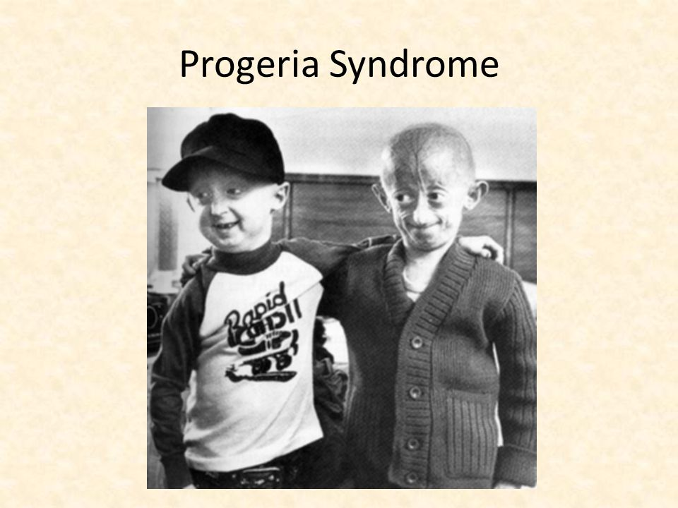 Progeria Syndrome