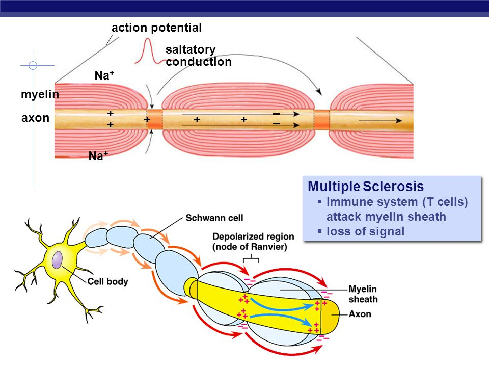 Multiple Sclerosis action potential saltatory conduction Na+ myelin +