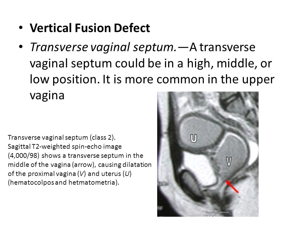 Vertical Fusion Defect