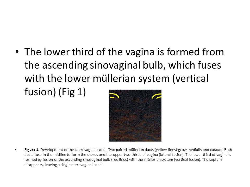 The lower third of the vagina is formed from the ascending sinovaginal bulb, which fuses with the lower müllerian system (vertical fusion) (Fig 1)