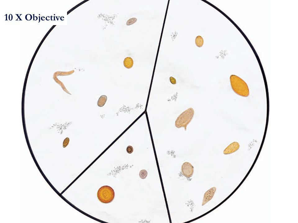 Laboratory Diagnosis Of Parasitic Infections Ppt Video