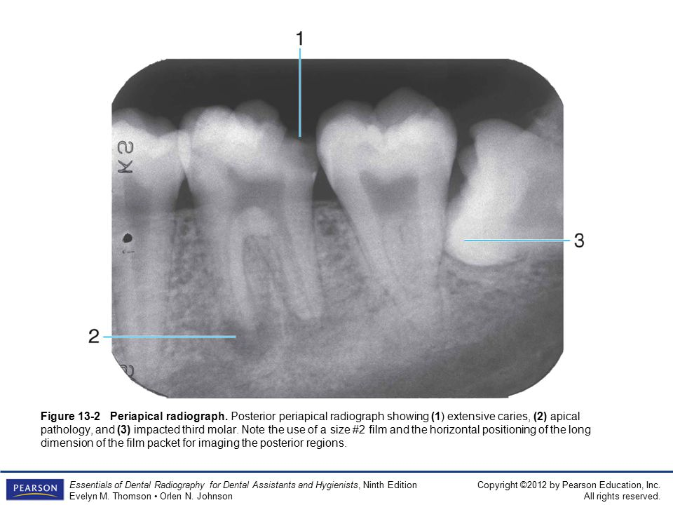 13 intraoral radiographic precedures ppt video online download 15 figure ccuart Image collections