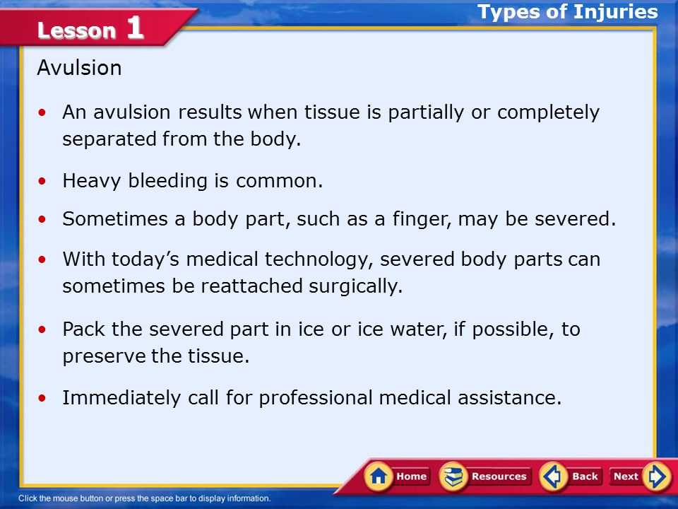 Avulsion Types of Injuries