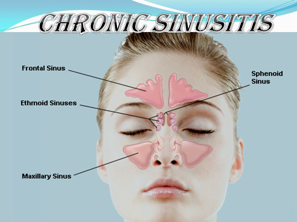 Chronic Sinusitis Ppt Video Online Download
