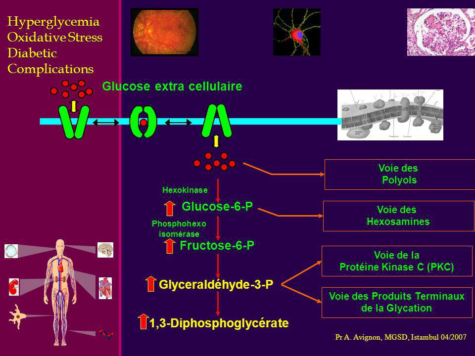 Hyperglycemia Oxidative Stress Diabetic Complications